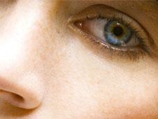 Lidstraffung gegen Augenringe, Tränensäcke und Hängelider
